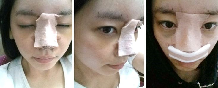 Rhinoplasty Real Review! Check out her surgical diary! #plasticsurgery #surgery #orthognathic #doublejaw #jawsurgery #jaw #mouth #teeth #braces #beauty #underbite #long #face #doublejawsurgery #orthognathicsurgery #maxillofacial #osteotomy #bone #rhinoplasty #blepharoplasty #nose #eyes #lips #chin #genioplasty #chinsurgery #korea #seoul #gangnam #lipo #liposuction #belly #reduction #cheekbone