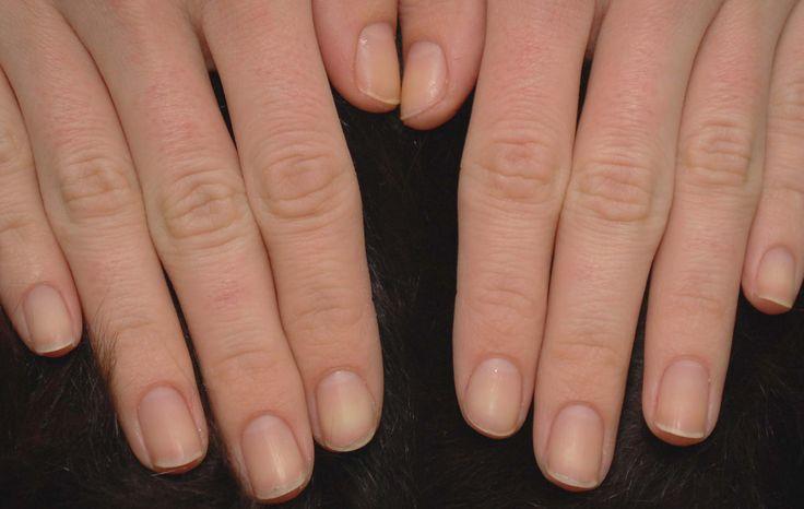 ¿Cómo recuperar tus uñas despúes de quitar las uñas de acrílico? - http://www.xn--todouas-8za.com/como-recuperar-tus-unas-despues-de-quitar-las-unas-de-acrilico.html