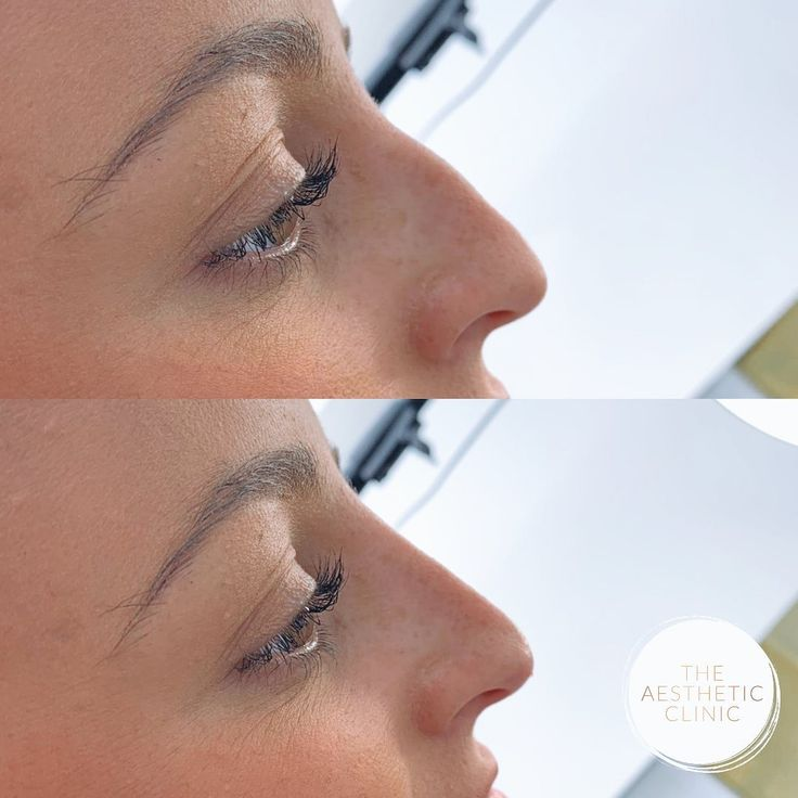 Kybella before after in 2020 Facial plastic surgery