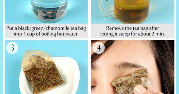 How to Get Rid of Pink Eye (Conjunctivitis) without Antibiotics | Health | Pinterest | Pink, How to get and Eyes