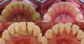 Boj proti zubnému kameňu nebol nikdy jednoduchší! Tento babský trik je jednoduchý a zaručene vám pomôže   Báječné Ženy