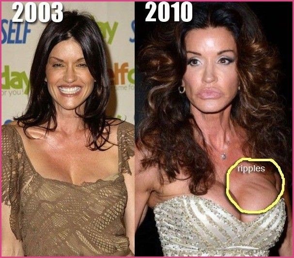 Bad breast augmentation