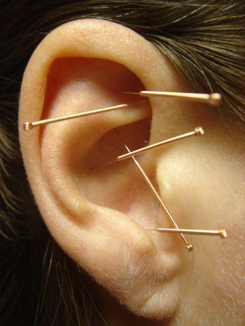 Иглоукалывание при похудении в ухо