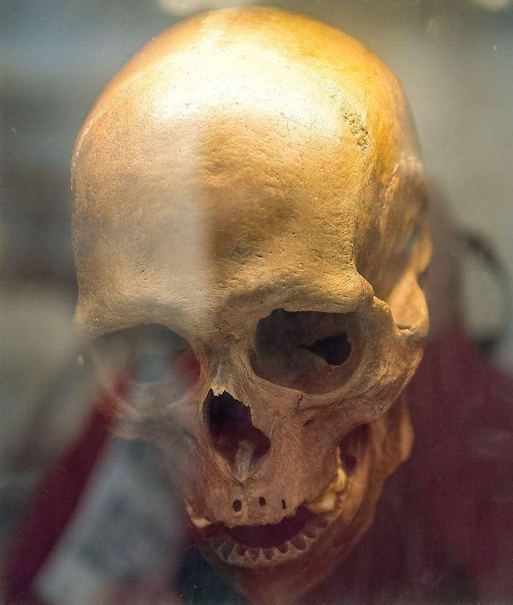 The Oldest Bog Body Dates from 8000 BC