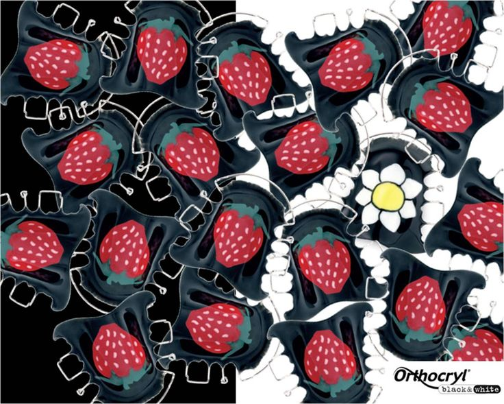 It's time for tasty strawberries, also on your orthodontic appliance and retainer! Create your own creative appliance with orthodontic acrylics Orthocryl® black & white by Dentaurum now #Orthocryl #orthodontics #strawberries