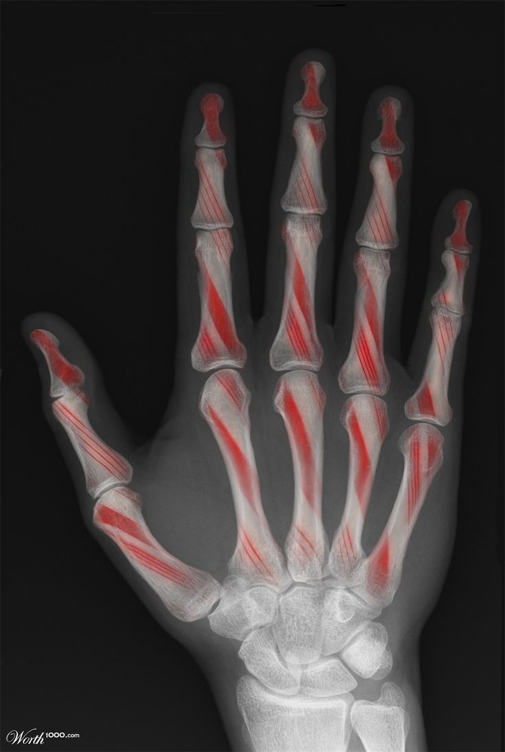 My Beadialogy Dolce And Gabbana Fall 2012 Rtw Part2: Best 25+ X Ray Humor Ideas On Pinterest