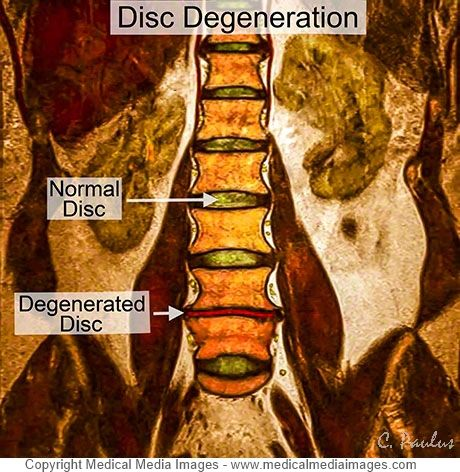 "degenerative disc disease with retrolisthesis Depending on the extent of the ddd (""degenerative disc disease""), this can  by  a bulging disc or spondylosis—retrolisthesis occasionally can result in pinched."