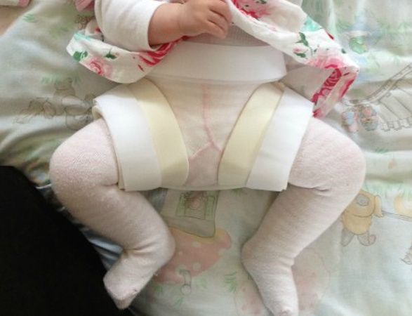 When Your Baby Is Diagnosed With Hip Dysplasia