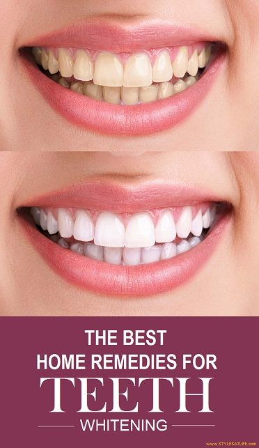 smile bright with these 25 natural teeth whitening. Black Bedroom Furniture Sets. Home Design Ideas