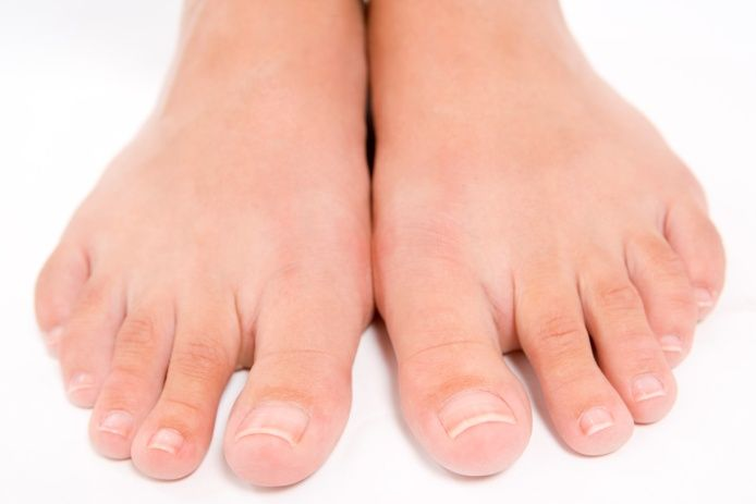 Toenail Fungus Research Study. Enrolling in Dallas with up to $1,525 provided if you qualify. Call 972-4-DOCTOR for information or click here to get started http://www.researchacrossamerica.com/patient-info/texas/menu-item-2-2/  #researchacrossamerica #dallas #toenailfungus