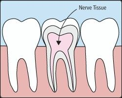 DISCOVER DENTISTS® Root Canal & Crown http://DiscoverDentists.com