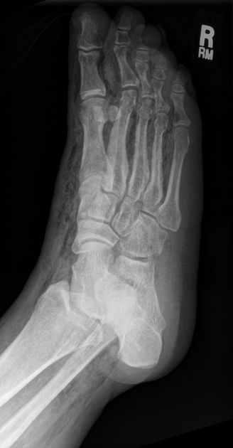 Necrotising faciitis in a diabetic foot: There is extensive subcutaneous emphysema tracking along the facial planes throughout the foot and distal leg. Note that the proximal extent of the subcutaneous gas is not visualized.