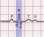 QRS Complex illustration