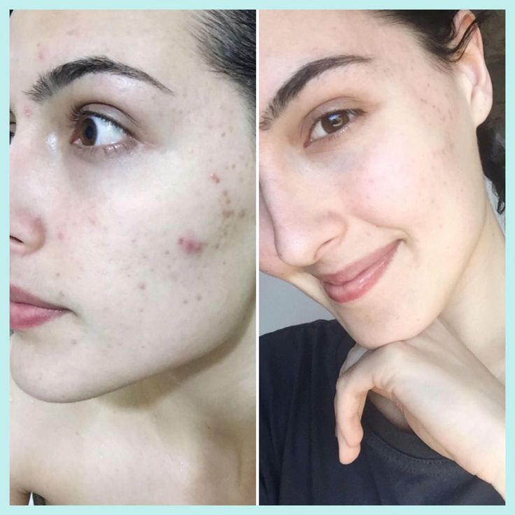 "Hi real-u! 💕 I'm SO happy! After almost 8 years of constant breakouts with constant cystic acne, I haven't had any since beginning in July!! I still have some scarring which seems to be fading so hopefully it will clear up with more time 😃 Thank you sooo much xxx"" - Chelsey"