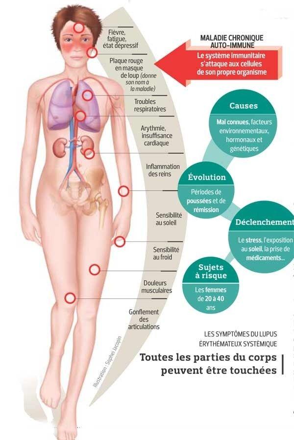 Le lupus: mieux compris et mieux traité   Actualité   LeFigaro.fr - Santé