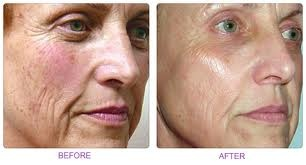 Laser 360 Treatment to improve texture, pigmentation and contour of the skin.
