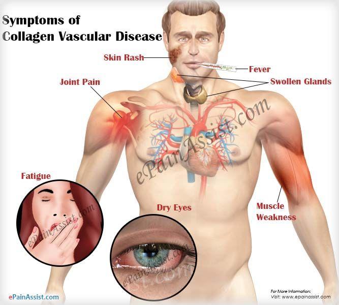 Symptoms of Collagen Vascular Disease