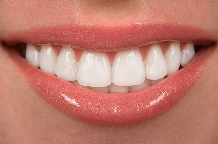 Get a Smile Makeover with Veneers! -  Glendale Dentist