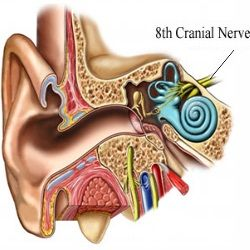 Top 5 Causes Of Acoustic Neuroma