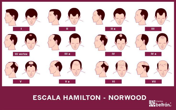 Alopecia androgenética: escala de Hamilton-Norwood y soluciones   Belleza natural