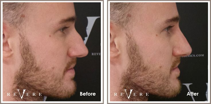 Alter the shape of your nose with the #nonsurgicalnosejob at #RevereClinics. No pain, no scars, no downtime. Perfect alternative to the surgical #rhinoplasty.   #nose #fillers #nosejob #bodyfixers #E4 #juvederm #filler #nosefiller #face #facialfiller #Northwood #London #nonsurgical #noscars #nopain