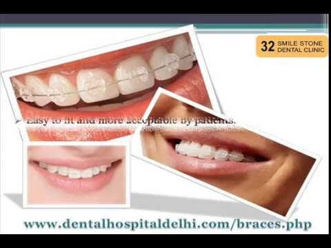 Looking for best Ceramic Braces in New Delhi? 32 Smile Stone Dental Clinic deals with best ceramic braces with amazing cost. Visit http://dentalhospitaldelhi.com/braces.php  for more information.