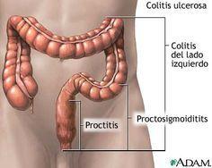 Causas de la colitis      Una de las causas de la colitis es la constipación crónica y el uso de purgantes. La constipación causa la ac...