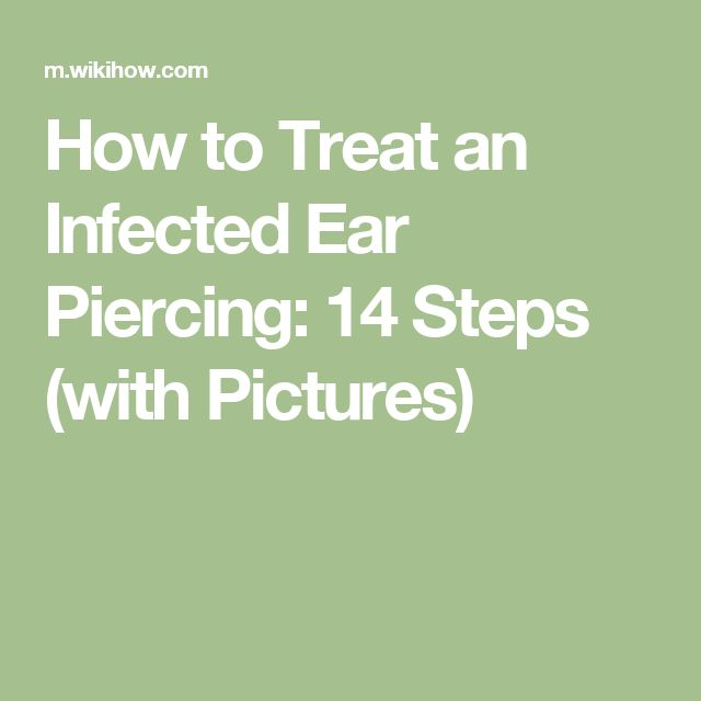 How to Treat an Infected Ear Piercing: 14 Steps (with Pictures)