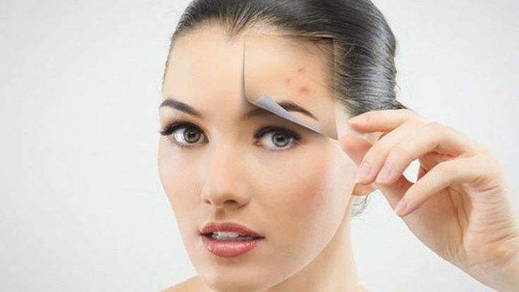 Most of us are aware of #Acne. But what exactly causes this #skin problem and what are the possible #cures for it. Know more about Dr. Sneh Thadani. Read More at