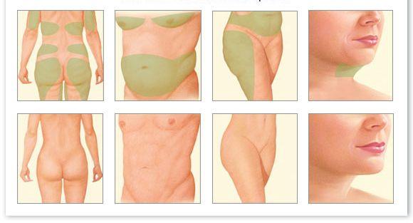 Üç+Aşamalı+Liposuction
