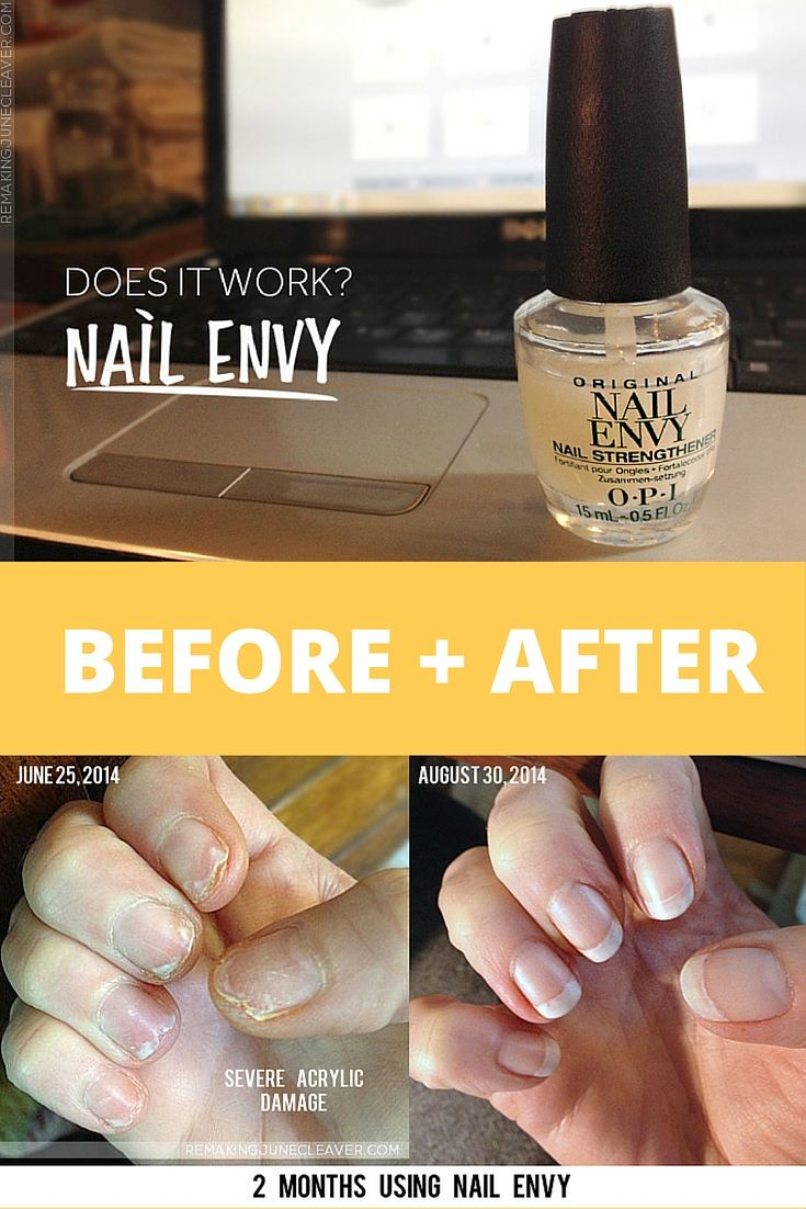 Does Nail Envy work? You be the judge! Check out my BEFORE and AFTER photos along with my nail healing regimen.