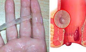 Vive Por Mas Tiempo: El tratamiento que cura definitivamente las hemorroides, este producto asombra a los médicos