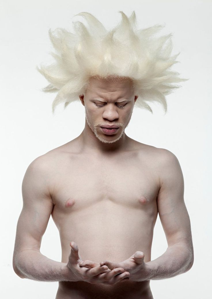 Albino White Afro Guys With Natural Hair Rock