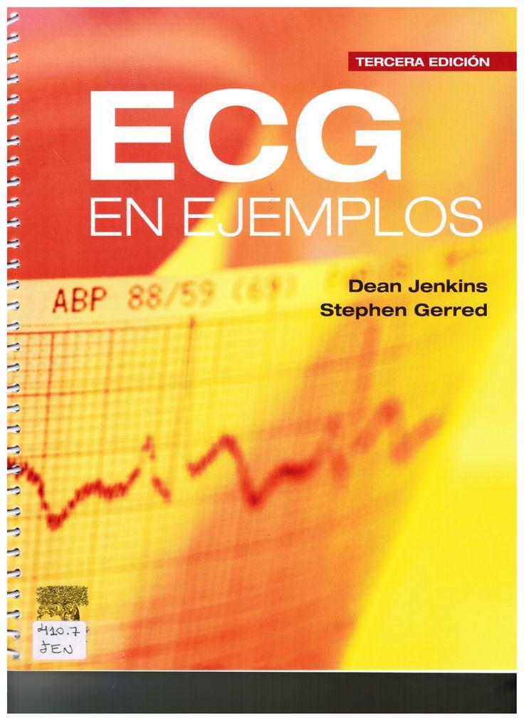 Jenkins D, Gerred S. ECG en ejemplos. 3a. ed. Amsterdam: Elsevier; 2012 (Ubicación 410.7 JEN)