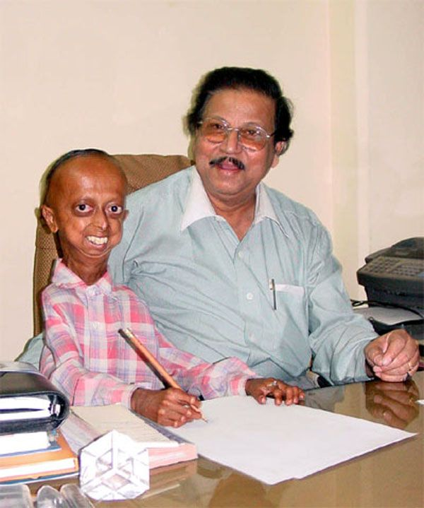 Hutchinson-Gilford Progeria Syndrome or Accelerated Aging. Super Duper sad.