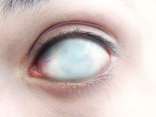 10 Best Images About Blind Eyes On Pinterest