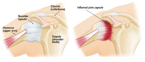 Frozen Shoulder-OrthoInfo - AAOS...A link between frozen shoulder and thyroid disorders.