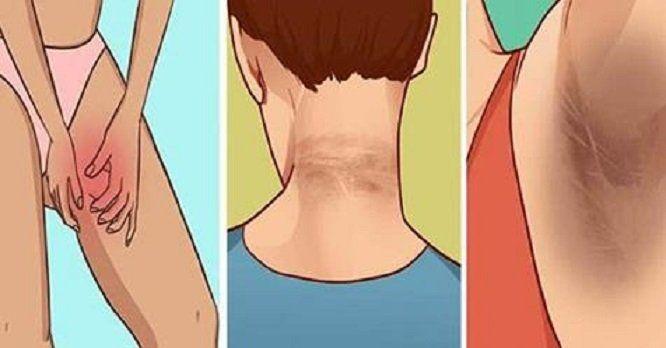 Comment éliminer les zones sombres au niveau du cou