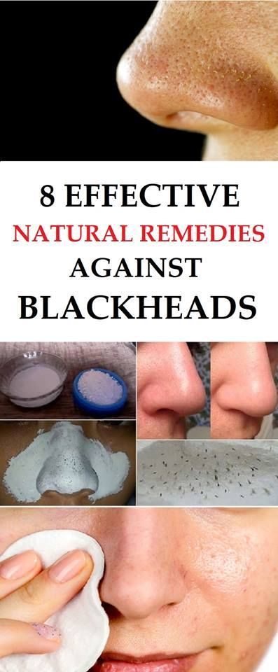 There are numerous natural remedies that will help you get rid of the blackheads. Here are the 8 best