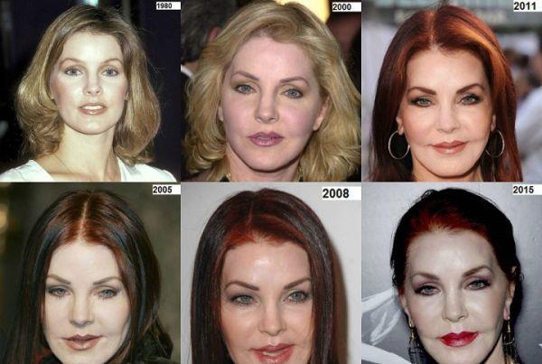 Priscilla Presley surgery transformations