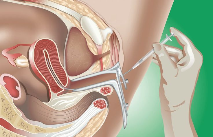 Intrauterine insemination (IUI) is a fertility treatment that places sperm directly into the uterus. Learn about the risks and effectiveness of IUI.