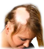 Homeopathy treatment for Alopecia - homeopathy wonderfully works on Alopecia without side effects. #Homeopathy #treatment #Alopecia