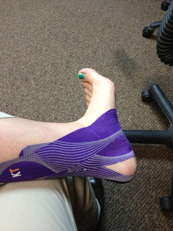 KT tape for sprained ankle- see if it helps with all the ...