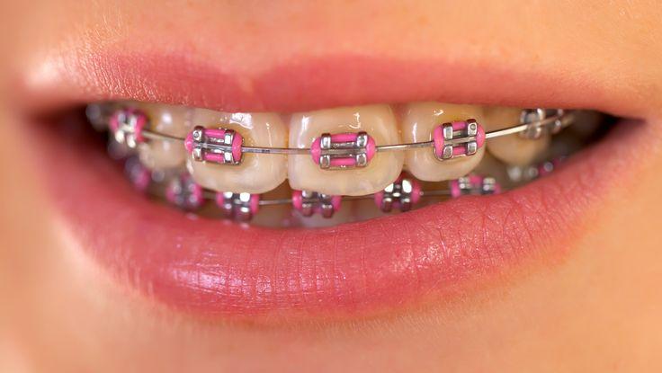 I remember always wanting pink braces in grade school.