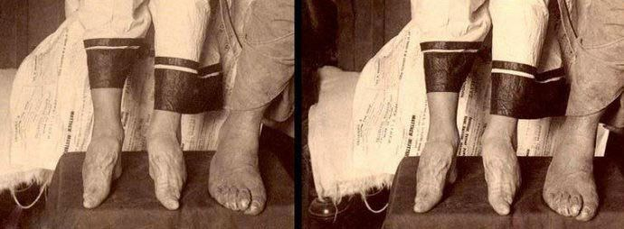 21 old (and scary) pictures of lotus feet - China Underground