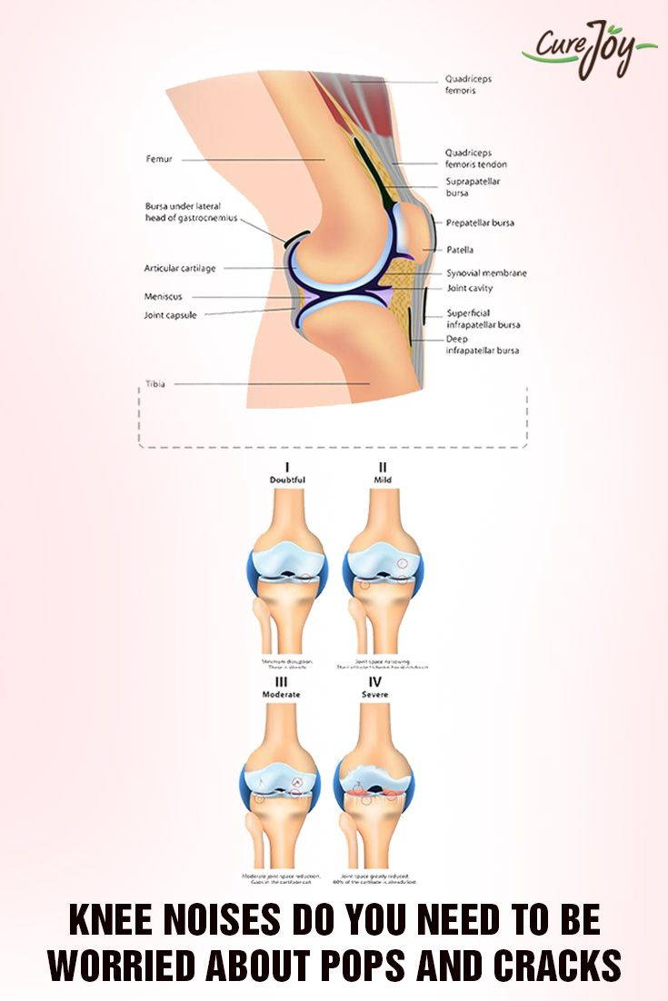 Knee Noises: Do You Need to Be Worried About Pops and Cracks? ==> #Health…