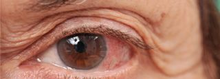 Viral and bacterial pink eye infections are contagious and spread very easily. Since most pink eye is caused by viruses for which there is usually no medical treatment, preventing its spread is important. Poor hand-washing is the main cause of the spread of pink eye.