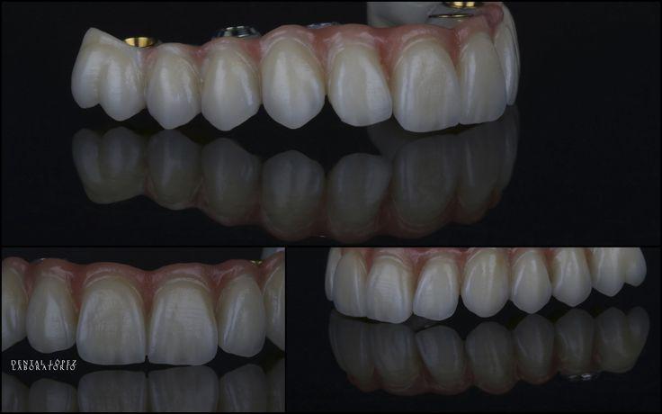 Rehabilitación dental #dentalopez