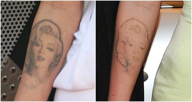 Tips To Heal Without Scarring Post Tattoo Removal Tattoo Removal Laser Tattoo Laser Tattoo Removal