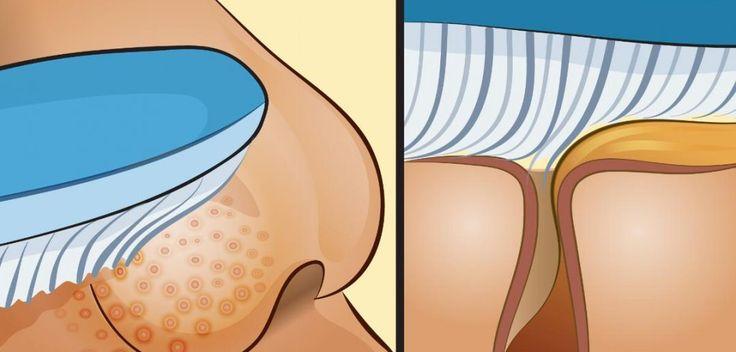 Como remover cravos usando uma escova de dentes